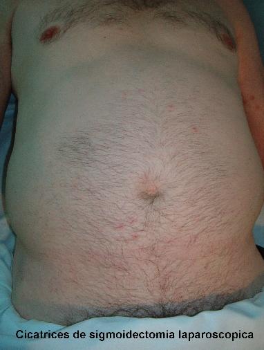 cicatrices cirugía de próstata